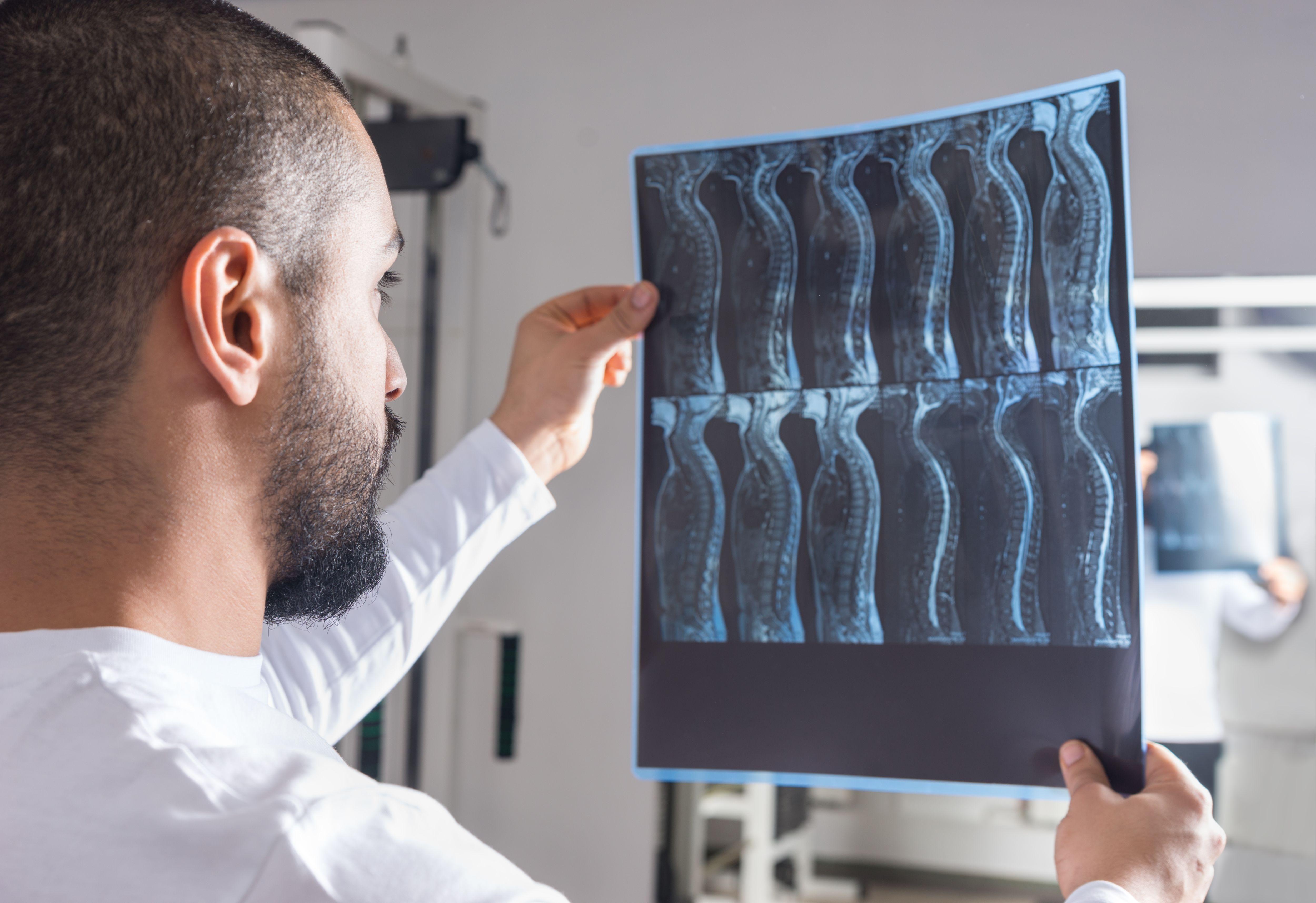 médecin analysant les résultats de radiographies du dos